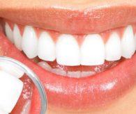 Diş beyazlatma kabusunuz olmasın!